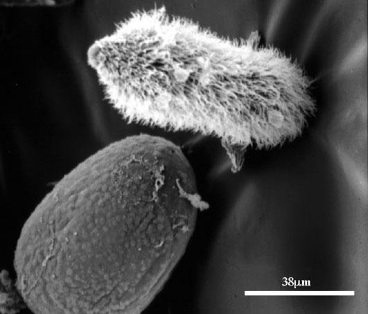 Les parasites et lécrevisse de la personne le citron